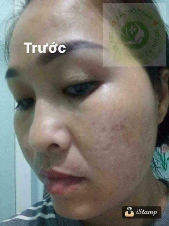 2-truoc-khi-su-dung-sac-moc-lam